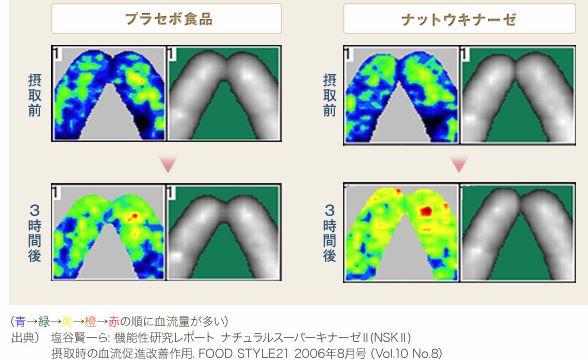 ナットウキナーゼの血流改善作用
