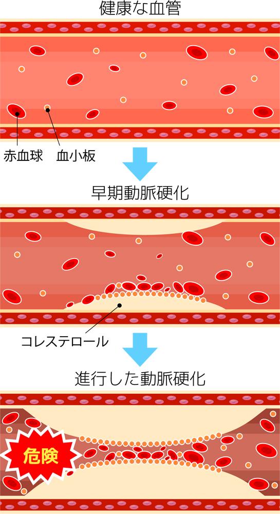 動脈硬化のイラスト図説
