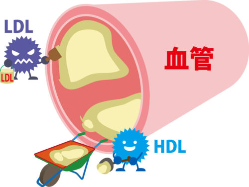 HDLとLDLの役割